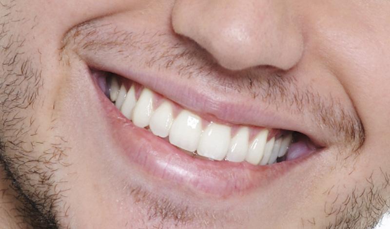 http://livedentstom.ru/wp-content/uploads/2017/03/teeth-smile-man.jpg